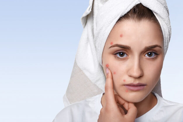 portrait young woman having problem skin pimple her cheek wearing towel her head having sad expression pointing 176532 9979